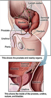 Natural Prostate Infection Treatment | Remedy Prostate Infection | Scoop.it