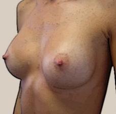 breast plastic surgery Lebanon   prtega0pp   Scoop.it