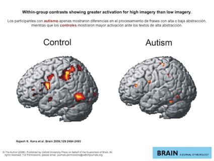 el cerebro del autismo | NEE Y PSIC | Scoop.it