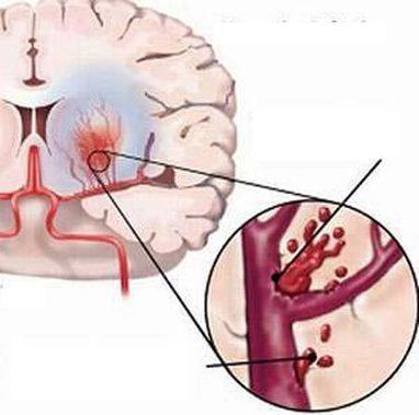 Liên hệ giữa bệnh cao huyết áp và đột quỵ não - Thiếu máu não | công nghệ | Scoop.it