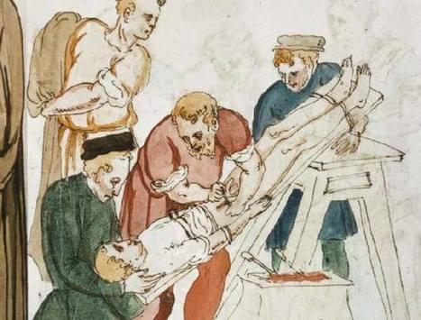 10 Ancient Medical Treatments   Medicina Primitiva   Scoop.it