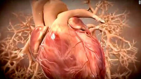 Heart attacks: What you should know - CNN | Tetralogy of Fallot (TOF) | Scoop.it