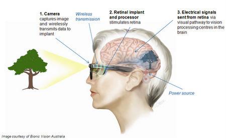 The Bionic Eye from Bionic Vision Australia | Medical Engineering = MEDINEERING | Scoop.it