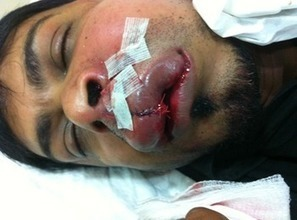 Bahrain: The regime takes revenge on peaceful activists | Human Rights and the Will to be free | Scoop.it