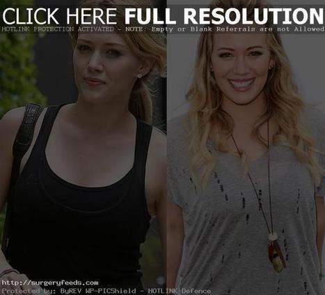 Hilary Duff Plastic Surgery Before and After Photo - 2014 | Plastic Surgery Before and After Photos | Scoop.it
