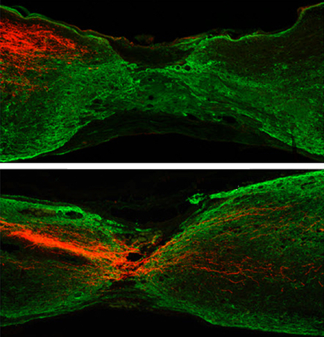How to regenerate axons to recover from spinal-cord injury | KurzweilAI | Longevity science | Scoop.it