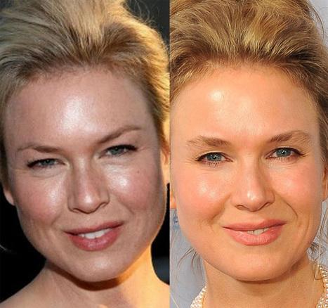 Renee Zellweger Plastic Surgery, Fail? | Celebrity Plastic Surgery | Scoop.it