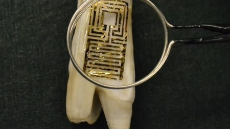 Graphene Tooth Tattoos: for your health, not your looks | Longevity science | Scoop.it
