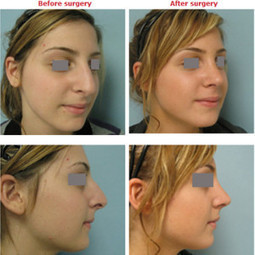 Discover a Rhinoplasty Surgeon   Change Your Look   Scoop.it