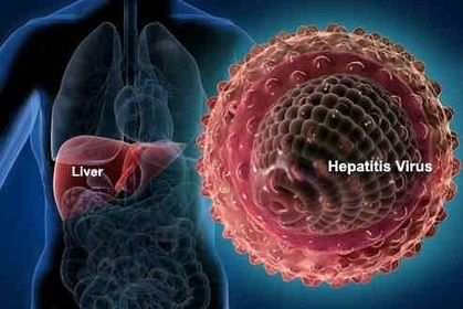 Viral Hepatitis: 20 Helpful Home Remedies to Fight Hepatitis   Health Digezt   Good Health   Scoop.it