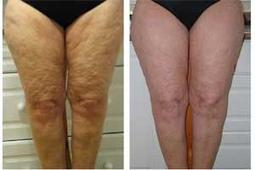 Pasos en relacion a como eliminar la celulitis de las piernas | Celulitis y Estrias | Scoop.it