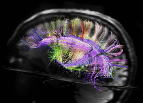 Your brain wiring is like a city, says neuroscience | Mom Psych | Scoop.it