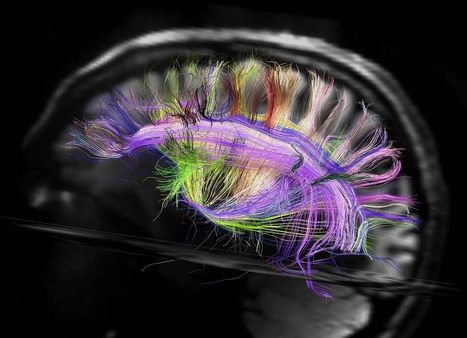 Your brain wiring is like a city, says neuroscience | NEUROSCIENCE | Scoop.it