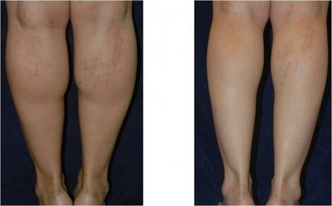 Plastic Surgery In Phuket Thailand: Calf Reduction Before And After Photos   Plastic SurgeryPhuket Thailand   Scoop.it