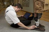 Two area amputees fitted with bionic ankle at Altru | Grand Forks Herald | Grand Forks, North Dakota | Differently Abled and Our Glorious Gadgets | Scoop.it