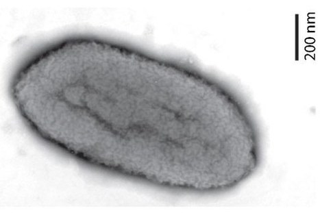 A new species of the fish pathogenic bacterium Edwardsiella - NVH | Aquaculture Directory | Scoop.it
