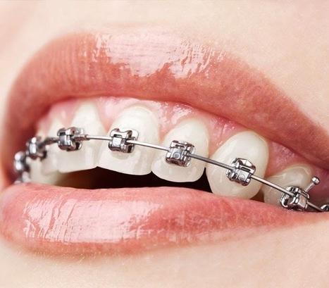 be pro dentist: ابدا حياتك المهنيه في مجال تقويم الاسنان من اي مكان فالعالم   spc   Scoop.it