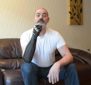 Metalworker Is Amazed by His New 'Terminator' Arm | Robotics Frontiers | Scoop.it