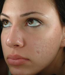 Exposed Skincare Acne Treatment Product | Best Natural Health Products | Scoop.it