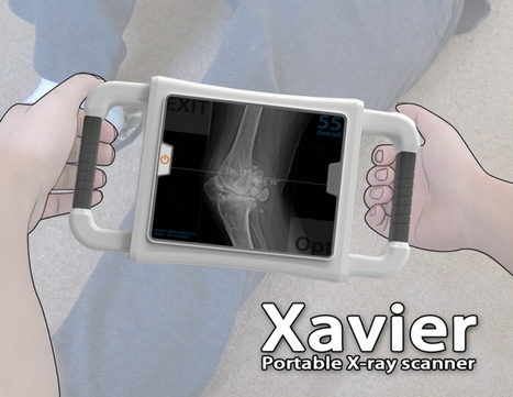 Xavier Portable X-Ray to Provide Better Medical Care for Survivors in Disaster Area | Tuvie | Medical X ray (TPE) | Scoop.it
