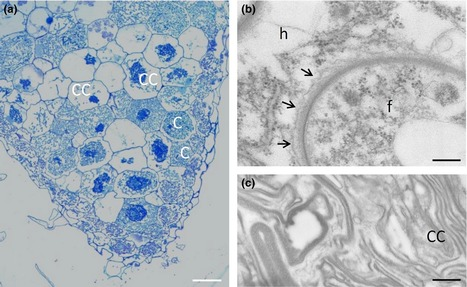 Fungal and plant gene expression in the Tulasnella calospora–Serapias vomeracea symbiosis provides clues about nitrogen pathways in orchid mycorrhizas | Plant roots and rhizosphere | Scoop.it
