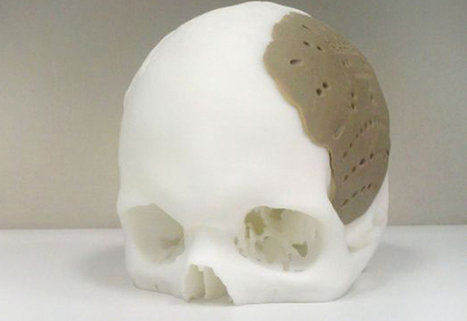Man Gets 75 Percent of Skull Replaced by 3D Printed Implant | The 3DP Report | Scoop.it
