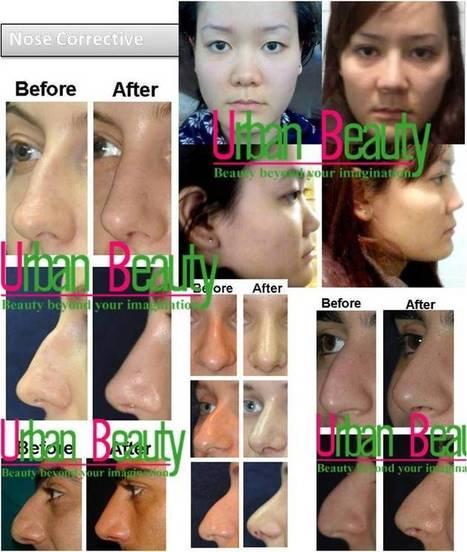 Nose Correction Thailand - Urban Beauty Thailand | Facelift Thailand Find Thai Face Lift Best Surgeons in Bangkok, Phuket Thailand | Scoop.it