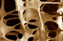Ultrasound Bone Densitometry | HEALTH News | Scoop.it