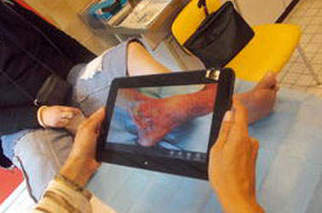 DOMOPLAIES : une aide à la prise en charge des plaies difficiles - L'infirmière au cœur de la télémédecine à la une de l'Université d'été de la esanté 2014 | Ils parlent de nous ! | Scoop.it