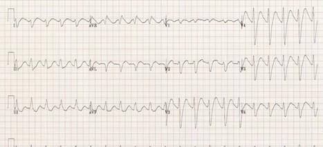The ECG in the poisoned patient - Emergency Medicine Ireland | Acute medicine | Scoop.it