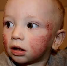 Research: Long Term Study Results - Children with Atopic Dermatitis | naturopathy for children | Scoop.it