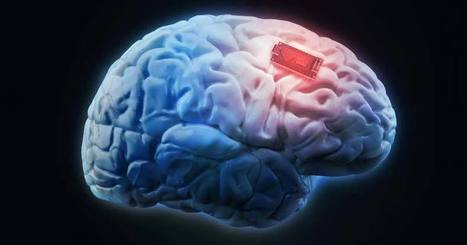 A Third of U.S. Adults Say They'd Be 'Enthusiastic' About Having a Microchip Implanted in Brain | News for IELTS + Class Discussion | Scoop.it
