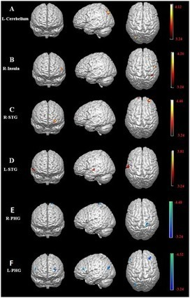 Structural and Functional Connectivity Changes in the Brain Associated with Shyness but Not with Social Anxiety | How is social anxiety different from shyness? | Scoop.it