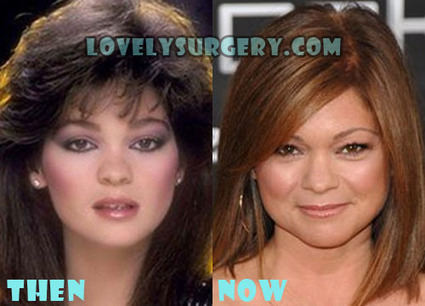 Valerie Bertinelli Plastic Surgery Before and After Rumor | Celebrity Plastic Surgery | Scoop.it