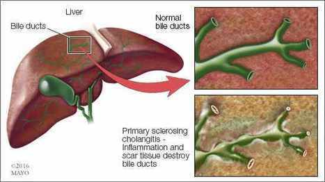 Mayo Clinic researchers update understanding of damaging liver disease | Hepatitis C New Drugs Review | Scoop.it