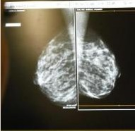 Breast cancer rates rising for African-American women | Breast Cancer News | Scoop.it