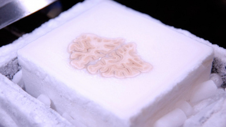 This famous brain was cut into 2,400 slices and uploaded to the cloud | Strange days indeed... | Scoop.it
