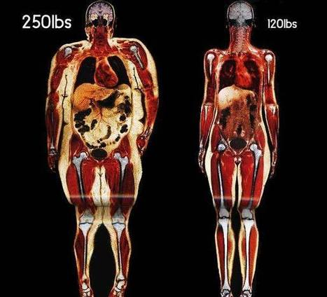What your body fat really looks like | Nutrition, Health and Overall Performance | Scoop.it
