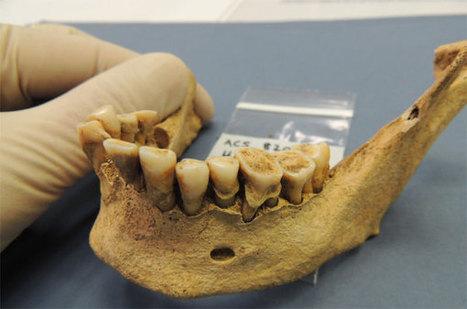 El análisis de bacterias de dientes antiguos permite ver la evolución de la dieta a lo largo de la historia - Arqueología, Historia Antigua y Medieval - Terrae Antiqvae | Evolución y Selección Natural | Scoop.it