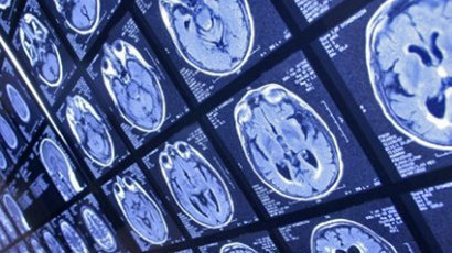 Scientists pinpoint potential breakthrough in treatment of brain disorders | BBSRC News Coverage | Scoop.it