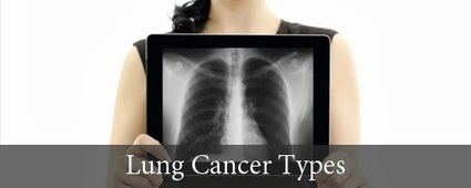 Lung Cancer Types - Lung Cancer Stages | Lung Cancer Stages | Scoop.it