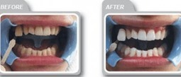Look forward to save money with affordable laser whitening teeth cost | John Marc | Scoop.it