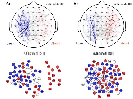 Multiscale topological properties of functional brain networks during motor imagery after stroke | Highlights | Scoop.it