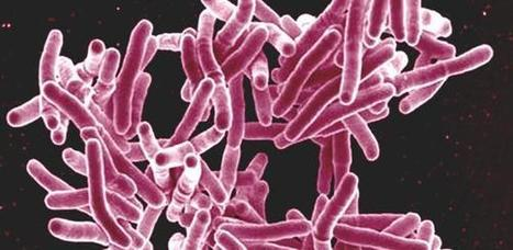 Gene Discovery Provides Clue to How TB May Evade the Immune System | Biomedical Beat | Scoop.it