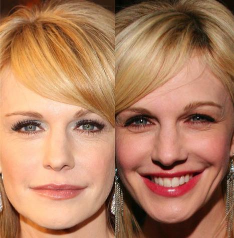Kathryn Morris Plastic Surgery: Glowing Skin | Celebrity Plastic Surgery | Scoop.it