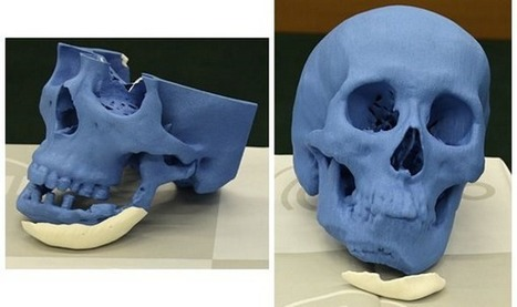 NEXT21 Japan signs deal with Xilloc to 3D print & sell customized artificial 'CT bones' within Europe | 3D_Materials journal | Scoop.it