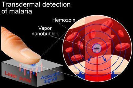 Paludisme : un dépistage fiable en quelques secondes avec un laser | lilouette | Scoop.it
