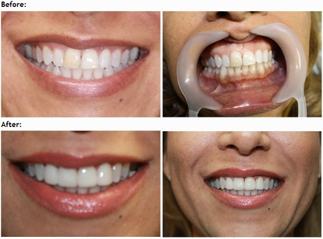 Root Canal Treatments in Encino - Dr. Maryam Navab | Easy Family Dental | Scoop.it