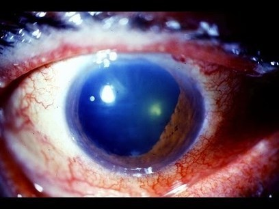 Glaucoma And The Cure | Bioscience | Scoop.it