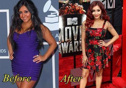Nicole Polizzi (Snooki) Plastic Surgery Before and After | Plastic ...